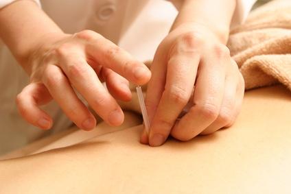鍼灸施術で膝の痛みを改善に導きます。