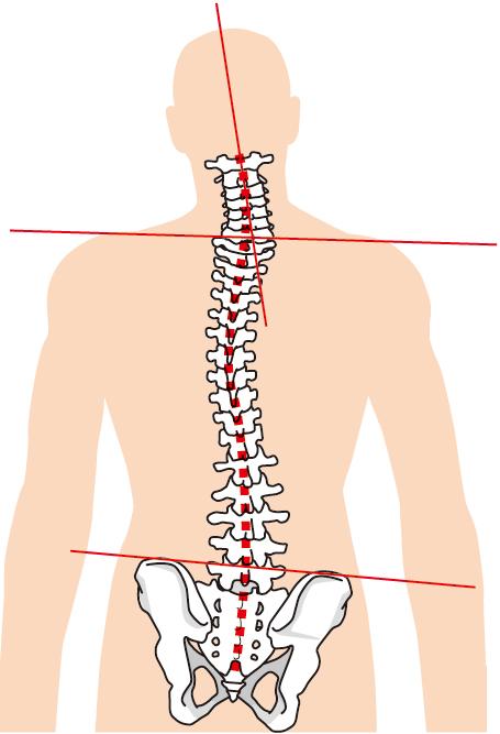 腰痛には特殊な器具を使用します。