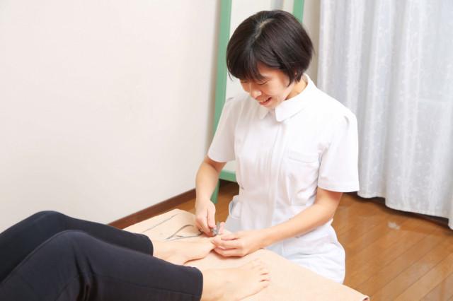 巻き爪施術