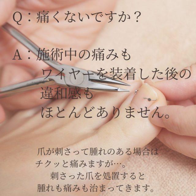 巻き爪Q&A