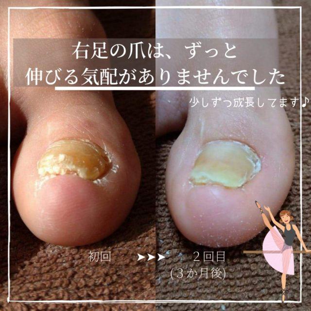 フェノール手術後の肥厚爪